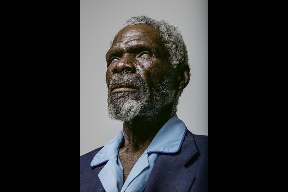 Gerd Gamanab, un uomo cieco che spera in un miracolo nel campus dell'ospedale di Omaruru, Namibia